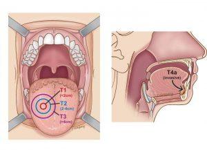 Rượu, thuốc là được xem là nguyên nhân dẫn đến ung thư lưỡi.