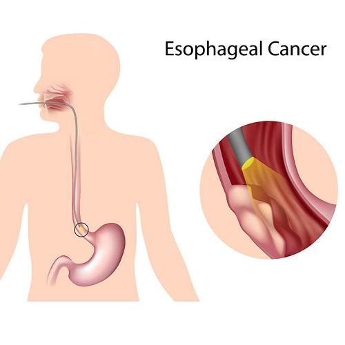 triệu chứng ung thư thưc quản khó nhận biết ở giai đoạn sớm