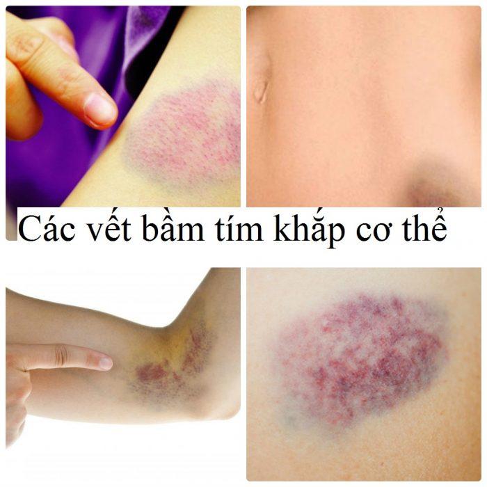 Các vết bầm tím là triệu chứng bệnh ung thư máu
