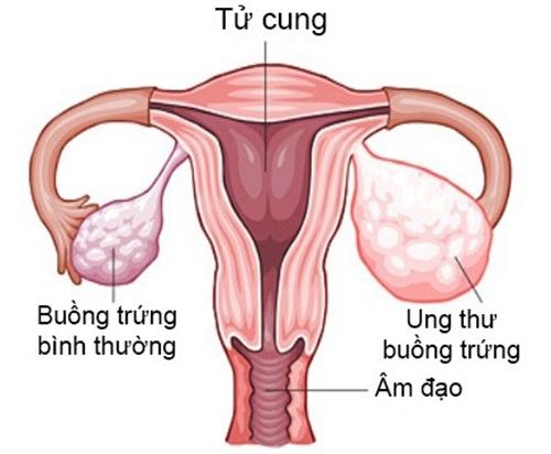 Phụ nữ mắc ung thư buồng trứng có thai được trong trường hợp còn một bên buồng trứng khỏe mạnh