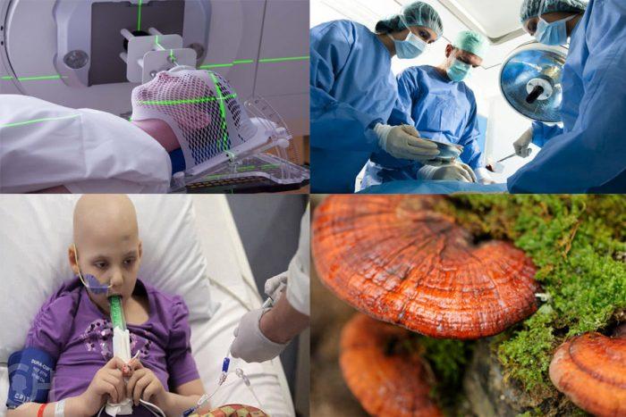 Ung thư có thể chữa được không phụ thuộc vào giai đoạn bệnh và phương pháp điều trị