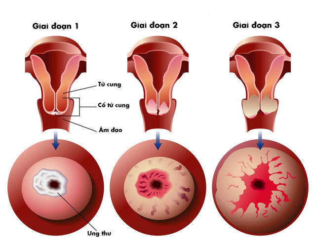 Ung thư cổ tử cung có lây không?