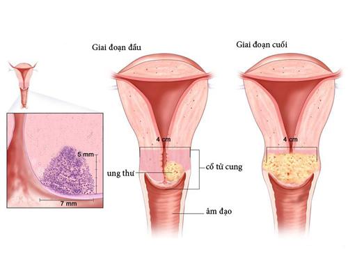 Theo Hiệp hội Ung thư Mỹ, ước tính có khoảng 12.340 trường hợp ung thư cổ tử cung ở Mỹ mỗi năm.