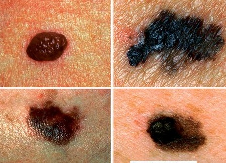 Ung thư da có chữa được không phụ thuộc vào nhiều yếu tố