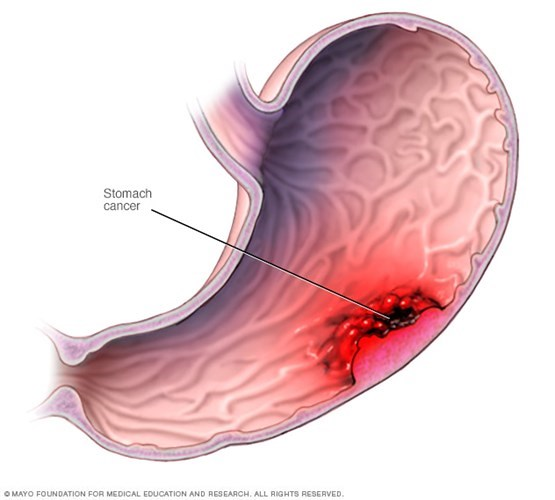 Ung thư dạ dày có thể điều trị bằng các loại thuốc Nam.
