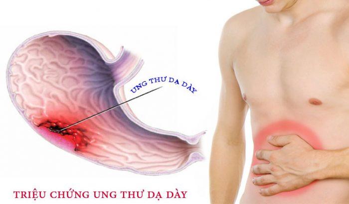 Bạn cần phải biết những triệu chứng về ung thư dạ dày