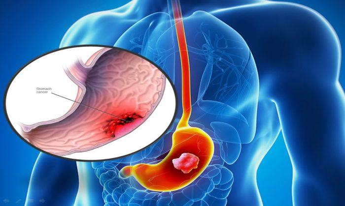 Bệnh ung thư dạ dày giai đoạn cuối và những thông tin bạn cần biết