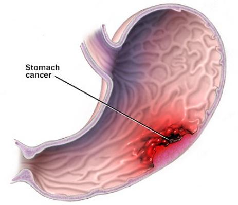 Ung thư dạ dày giai đoạn đầu nếu được phát hiện kịp thời có thể chữa khỏi bệnh