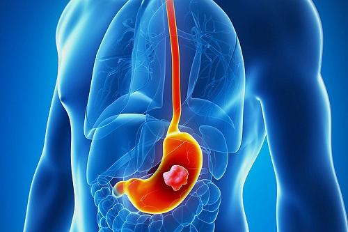 ung thư dạ dày có di truyền không