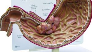 Ung thư dạ dày xuất phát bởi nhiều nguyên nhân nhưng chủ yếu do đường ăn uống