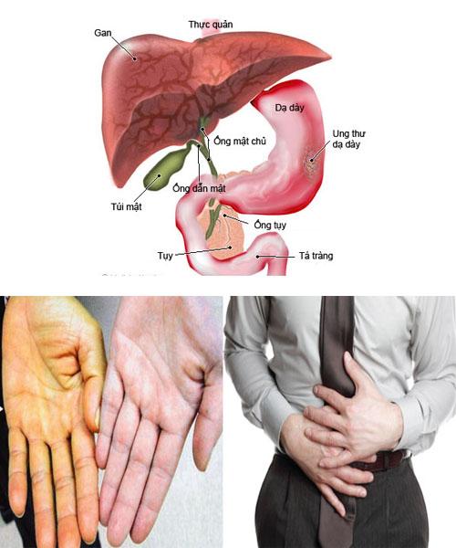 Một số triệu chứng ung thư dạ dày di căn sang gan