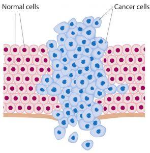 Ung thư dạ dày sống được bao lâu là câu hỏi của nhiều độc giả gửi về cho chúng tôi