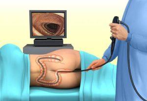Nên kiểm tra ung thư đại trực tràng thường xuyên