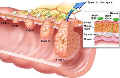 Ung thư đại tràng sống được bao lâu tùy thuộc vào nhiều yếu tố
