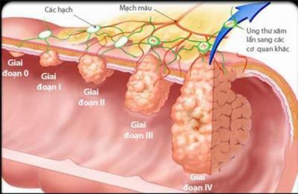 các giai đoạn ung thư đại trực tràng