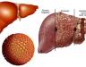 Ung thư gan có thể chữa khỏi không qua nhận định của bác sỹ