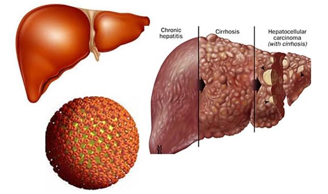 Tiên lượng chính xác bệnh ung thư gan có thể chữa khỏi không?