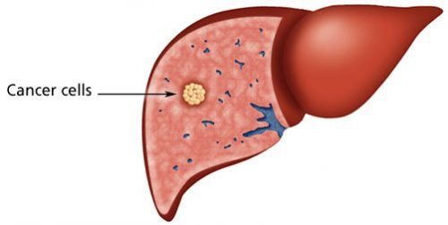 ung thư gan giai đoạn 2