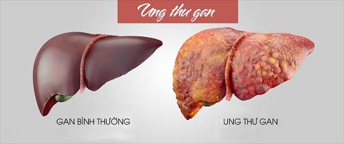 Biểu hiện của bệnh ung thư gan khiến bề mặt lá gan thay đổi rõ rệt