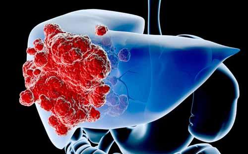 trị ung thư gan khiến người bệnh giảm cân nhanh chóng