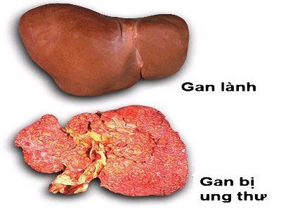Hình ảnh của gan trước và sau khi bị ung thư