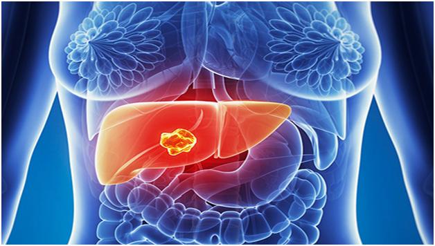 Bệnh nhân ung thư gan cần có chế độ ăn uống và sinh hoạt khoa học
