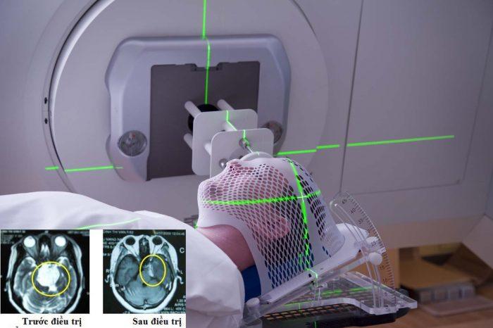 Ung thư não có chữa được không? Phương pháp điều trị bệnh ung thư não?