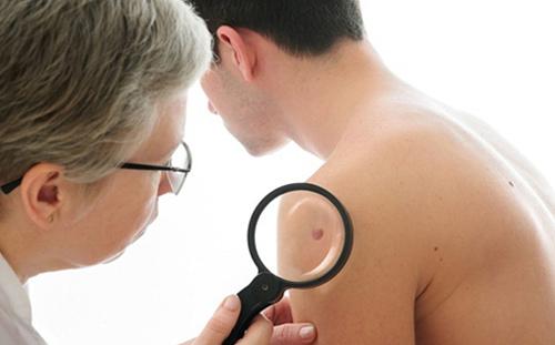 Ung thư nốt ruồi có chữa được không và có để lại hậu quả gì không?