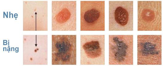 Ung thư nốt ruồi sẽ có dấu hiệu từ nhẹ tới nặng