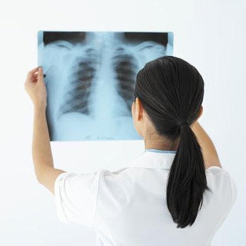 Ung thư phế quản có lây không?