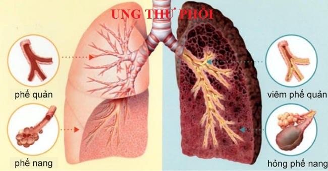 Tầm soát ung thư phổi ở đâu Hà Nội đảm bảo và giá cả hợp lí nhất?