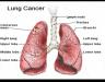 Bệnh ung thư phổi di căn gan – Biểu hiện và cách điều trị