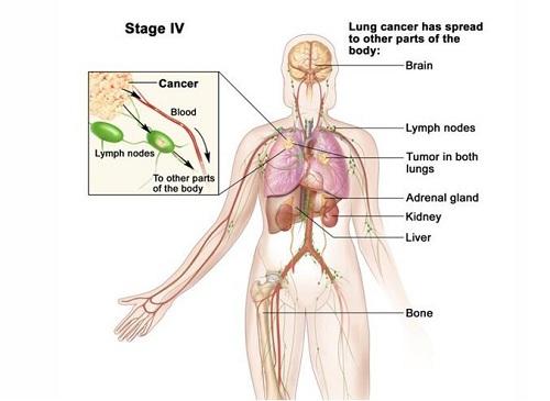 Ung thư phổi di căn hạch thượng đòn có nên mổ lấy hạch không?
