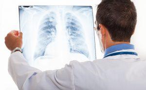 Hóa trị và xạ trị là phương pháp phổ biến trong điều trị ung thư phổi di căn vào xương.
