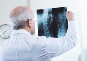 Ung thư phổi di căn vào xương thường xuất hiện ở vị trí xương sống, xương chậu.
