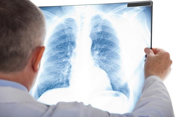 Điều trị ung thư phổi di căn xương dựa trên các chẩn đoán của bác sỹ.