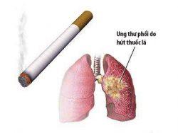 Nguyên nhân chính dẫn đến ung thư phổi là do khói thuốc lá