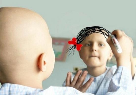 Điều trị ung thư phổi bằng hóa trị gây rụng tóc.