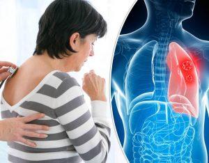 Ung thư phổi sống được mấy năm? Đây là câu hỏi được quan tâm nhất.