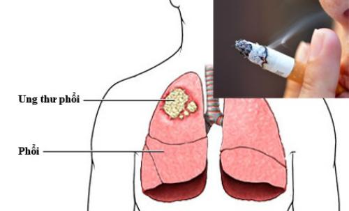 Có hơn 80% các ca ung thư phổi trên thế giới điều liên quan đến khói thuốc lá.