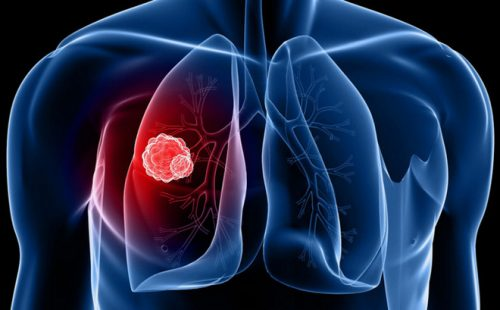 Ung thư phổi gây ra các triệu chứng ảnh hưởng đến sức khỏe người bệnh.