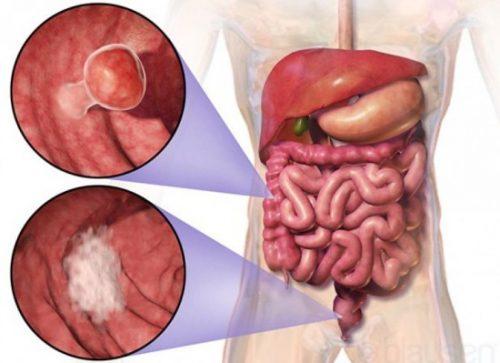 Khi phát hiện các biểu hiện của ung thư ruột già giai đoạn 2 cần thăm khám để điều trị kịp thời.