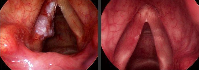 Triệu chứng của ung thư thanh quản chia làm 2 giai đoạn