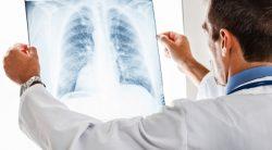 Ung thư thực quản di căn phổi không thể chữa khỏi. Mọi biện pháp chỉ có tác dụng hỗ trợ điều trị các triệu chứng di căn