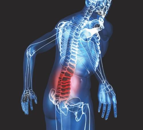 Ung thư tiền liệt tuyến di căn xương khi nào?