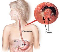 ung thư thực quản giai đoạn 3 là căn bệnh có thể gây nguy hiểm tính mạng
