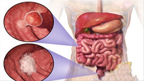 Ung thư trực tràng giai đoạn 1 có cơ hội chữa khỏi