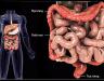 Ung thư trực tràng giai đoạn đầu có thể nhận biết qua các dấu hiệu nào