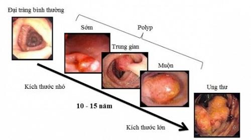 Ở ung thư trực tràng giai đoạn đầu, khối u chưa phát triển rõ rệt.