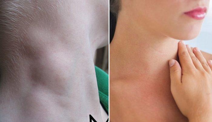 Khám gì để biết ung thư vòm họng? Người bệnh nên khám khu vực vùng cổ